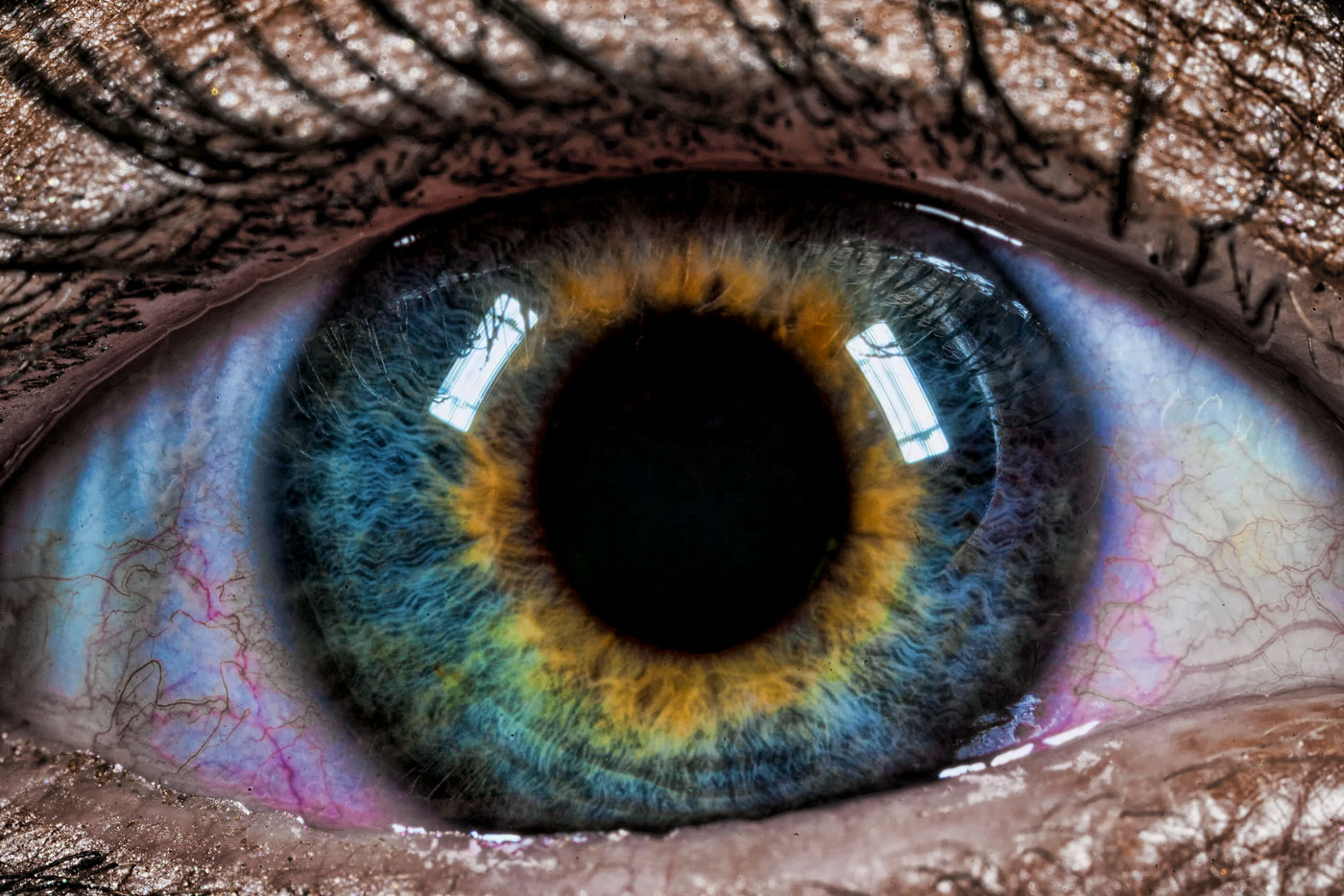 Alexander suffered from heterochromia iridum that one eye was was blue and the other was brown.